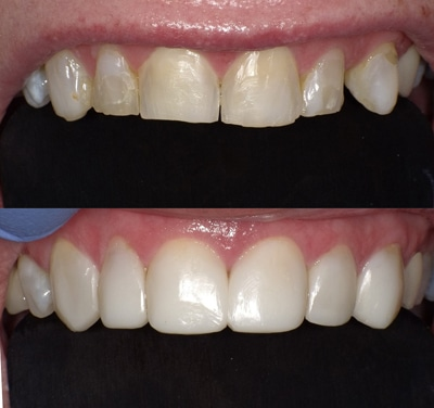 Cost to fix a cracked front tooth