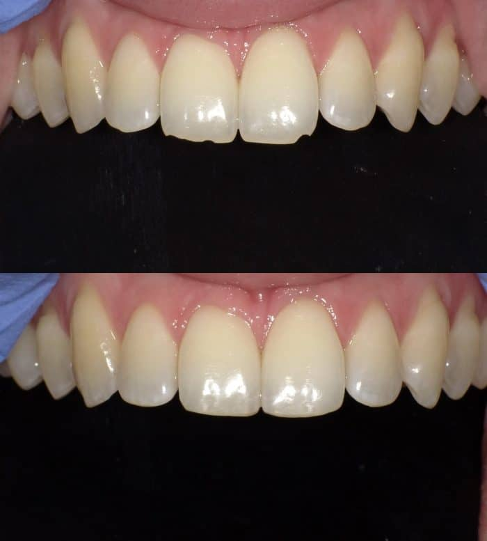 Smile Makeovers - Austin Artistic Dental - Best Cosmetic