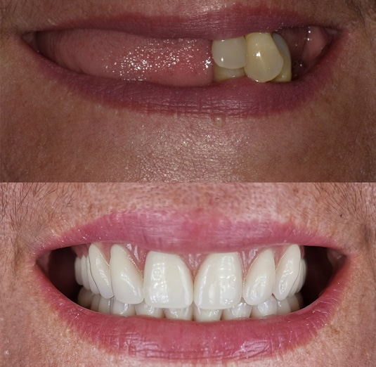 Before & After - Austin Artistic Dental - Best Cosmetic